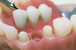 мост на зубы