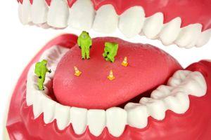 удаление микробов из полости рта