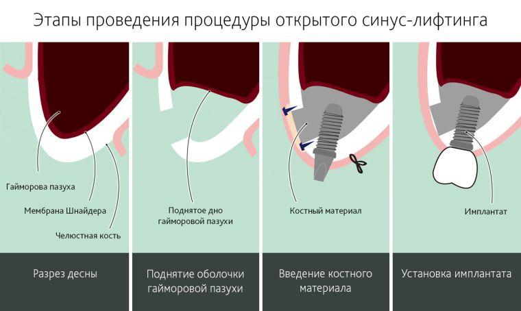 этапы открытого синус лифтинга