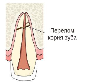 отломом корня зуба