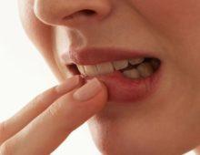 рак полости рта