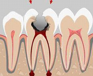 Реферат проявление заболевании полости рта