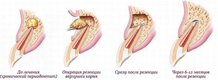 результат апексэктомии