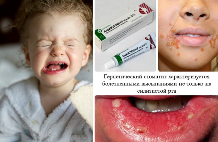Симптомы вирусного стоматита