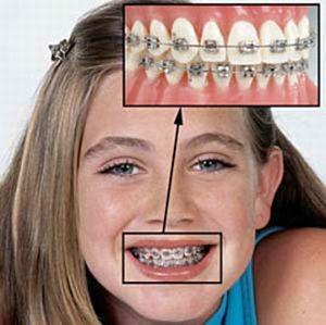 Брекет-системы на зубах