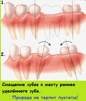 смещение зуба