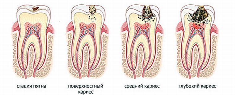стадии развития кариеса