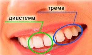 трема и диастема