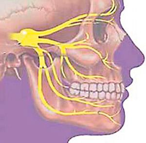 Воспаление тройничного нерва