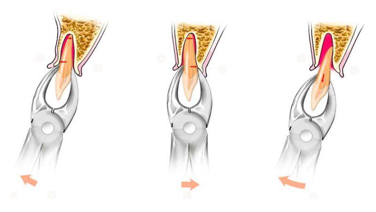 удаление корня зуба с помощью щипцов