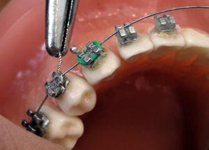 установка систем на зубы