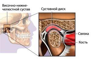 дисфункция ВНЧС