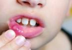 белые язвочки во рту