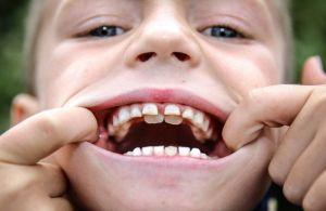 Смена коренных на молочные зубы