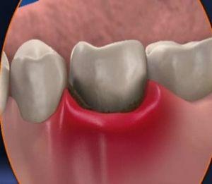 процесс воспаления в зубе