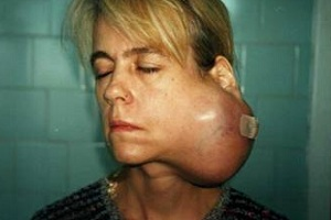 четвертая стадия опухоли слюнных желез