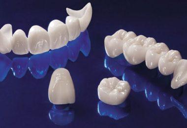 керамические зубы