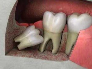 дистопия зубов