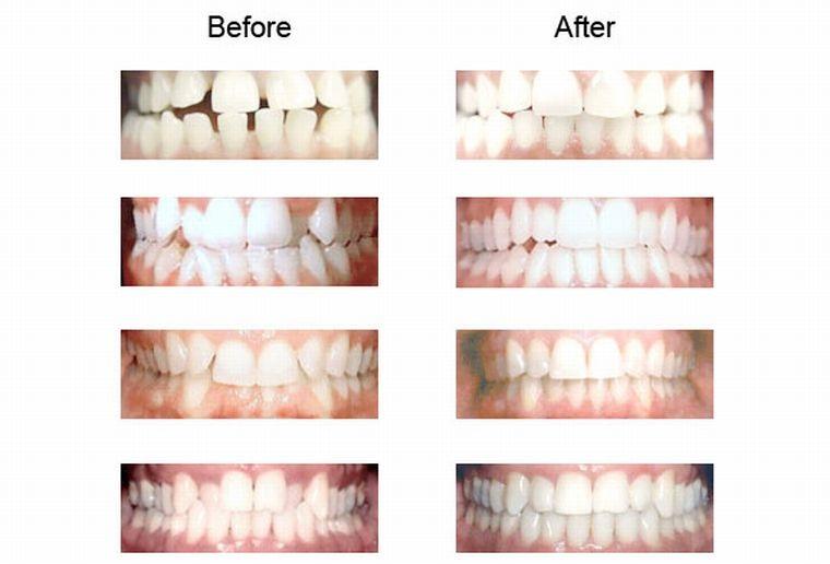 до и после лечения элайнерами