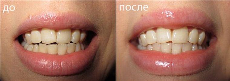 до и после насыщения эмали минералами