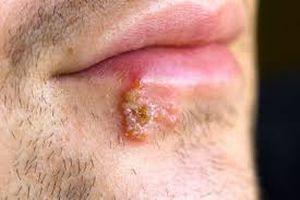 болячки на губе