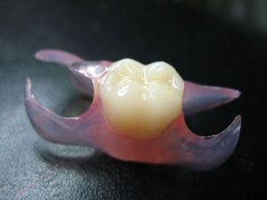 иммедиат на зубы
