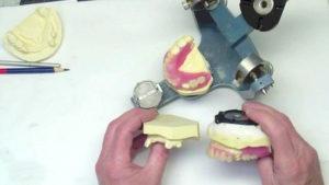 изготовление протеза бабочка