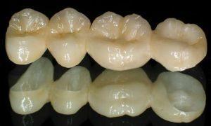 зубы из керамики