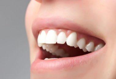 зубной ряд после протезирования