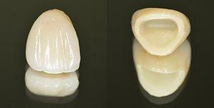зубные коронки