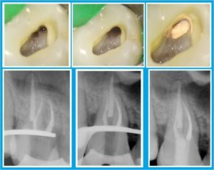 рентген при лечении каналов
