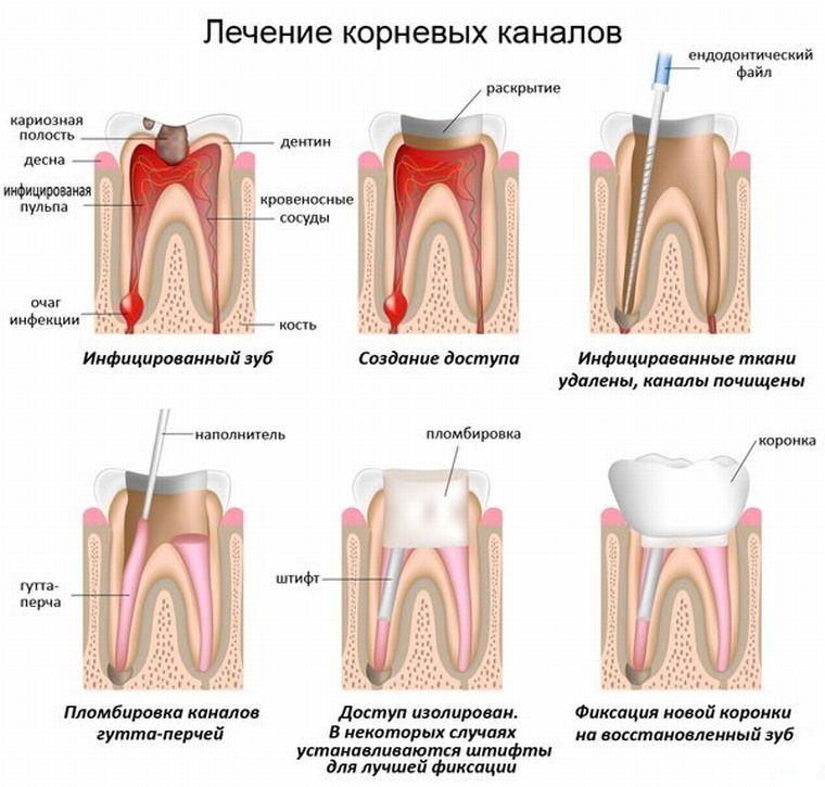 этапы лечения зубных каналов