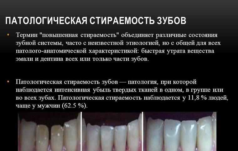 стираемость зубов патологическая