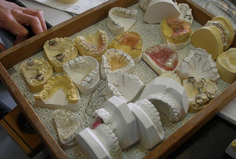 Слепки пластинок на зубы