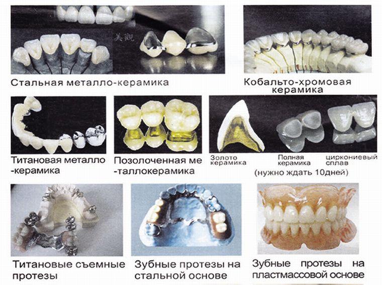 Разновидности протезов