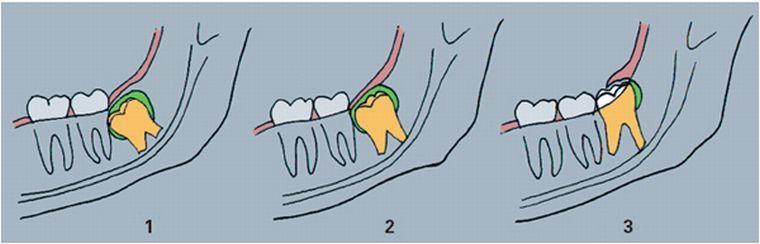 удаление ретированного зуба