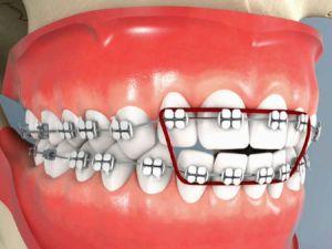 эластики на зубы