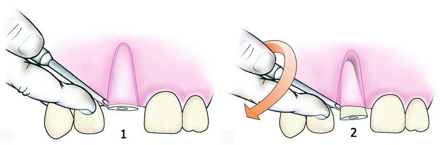 Удаление зуба элеватором