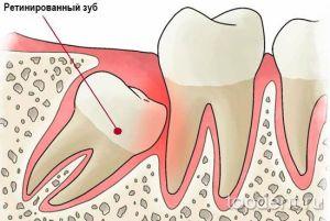 Ретинированный зуб