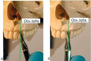 удержание стоматологического инструмента