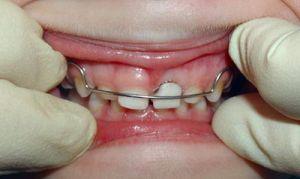 установка и подкрутка пластинки на зубы ребенку