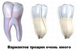 виды зубных трещин