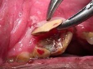Такое запущенное воспаление корня зуба, как на фото, может стать причиной сепсиса