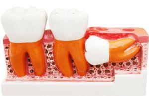 зубы аномальные