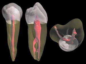 разрушение зубного нерва