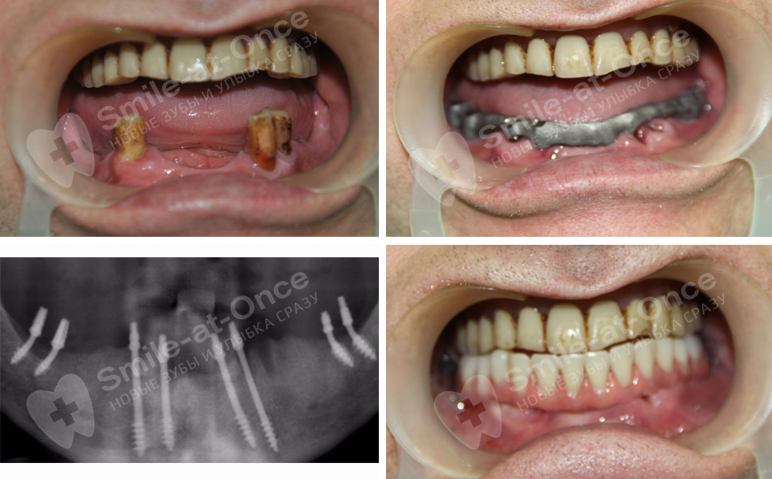 implantacia_nignya_chelust