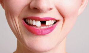 отсутствие зуба
