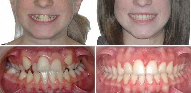 До и после коррекции брекетами