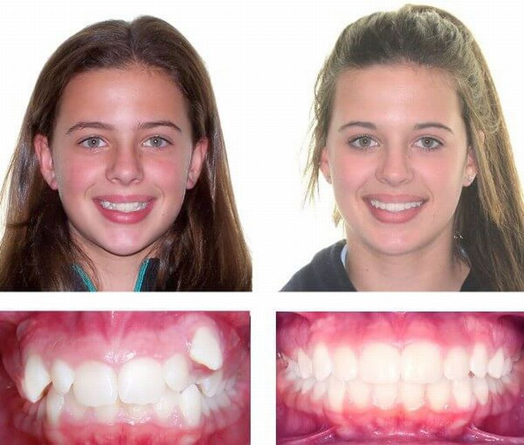 Результат коррекции зубного ряда