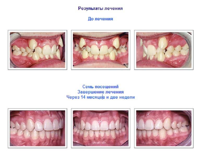 Результат лечения зубов брекетами Damon